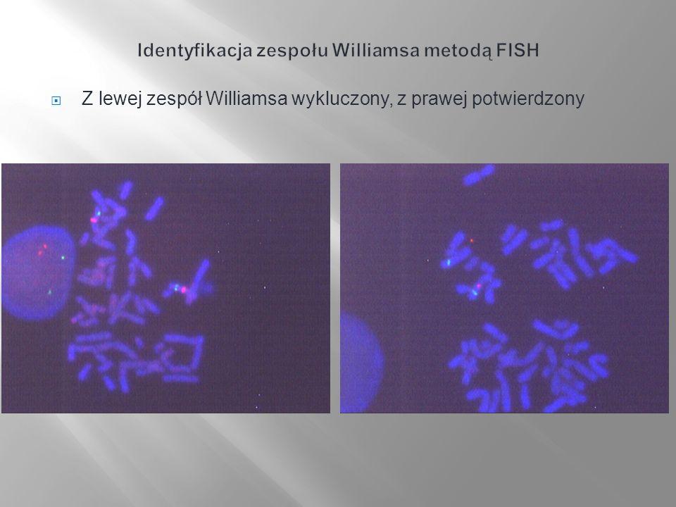 Identyfikacja zespołu Williamsa metodą FISH