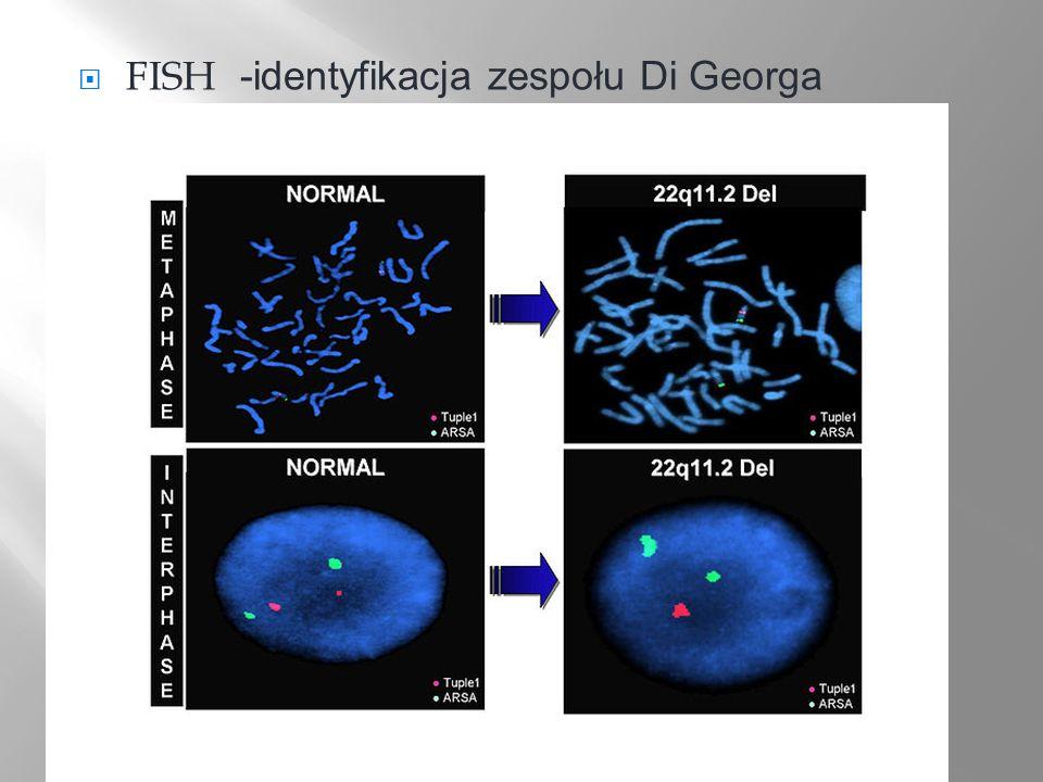 FISH -identyfikacja zespołu Di Georga