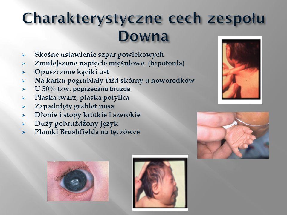 Charakterystyczne cech zespołu Downa