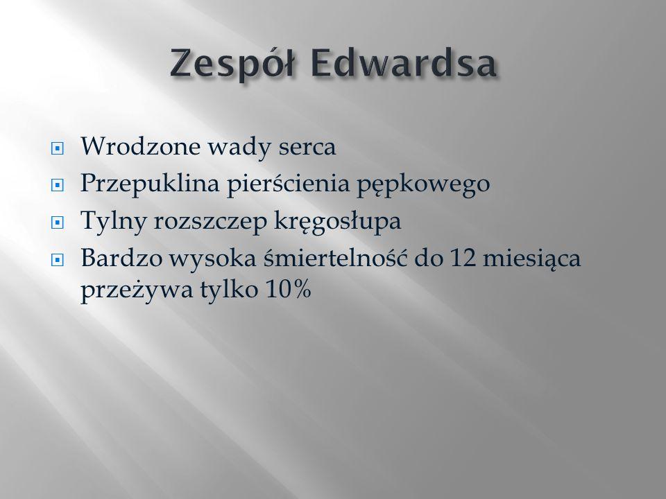 Zespół Edwardsa Wrodzone wady serca Przepuklina pierścienia pępkowego