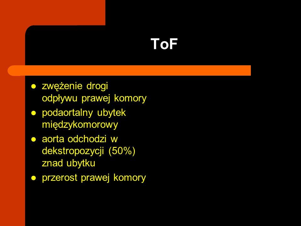 ToF zwężenie drogi odpływu prawej komory