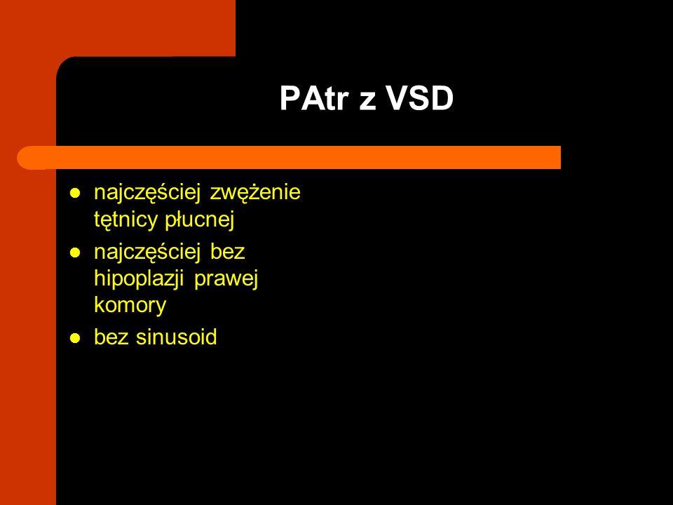 PAtr z VSD najczęściej zwężenie tętnicy płucnej