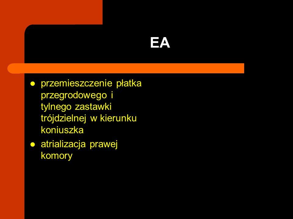 EA przemieszczenie płatka przegrodowego i tylnego zastawki trójdzielnej w kierunku koniuszka.
