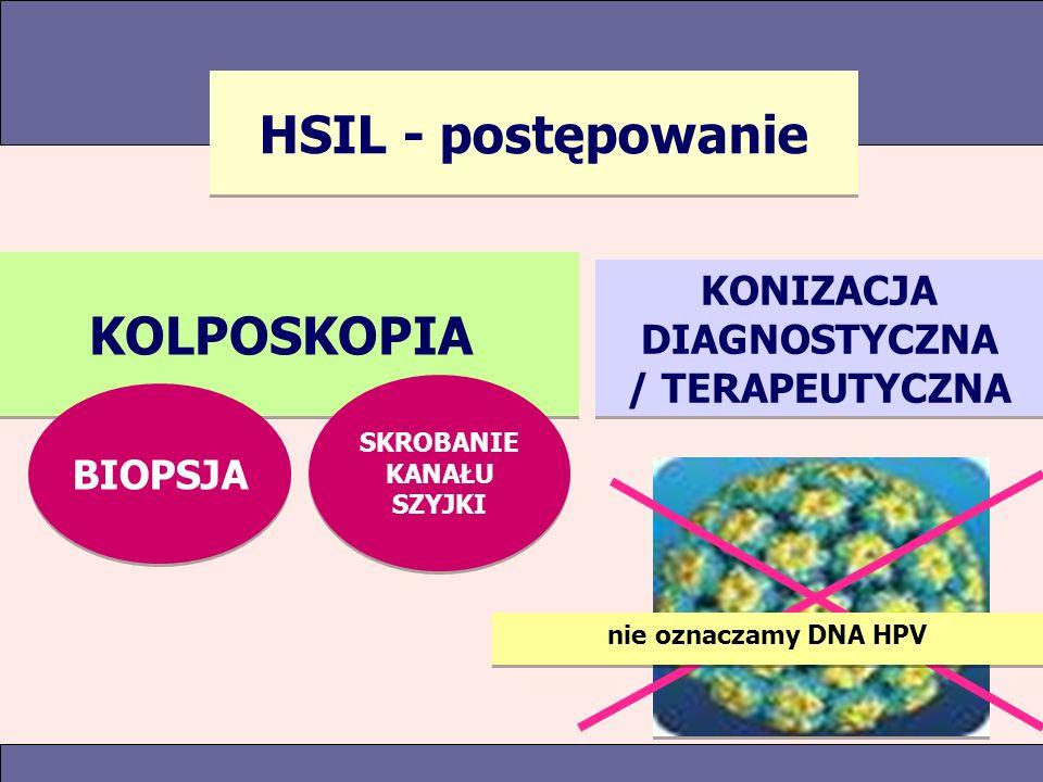 HSIL - postępowanie KOLPOSKOPIA