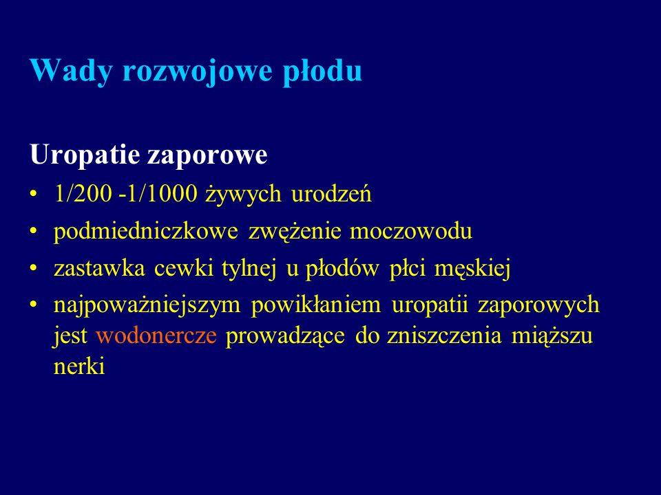 Wady rozwojowe płodu Uropatie zaporowe 1/200 -1/1000 żywych urodzeń