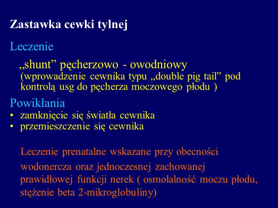 """""""shunt pęcherzowo - owodniowy"""