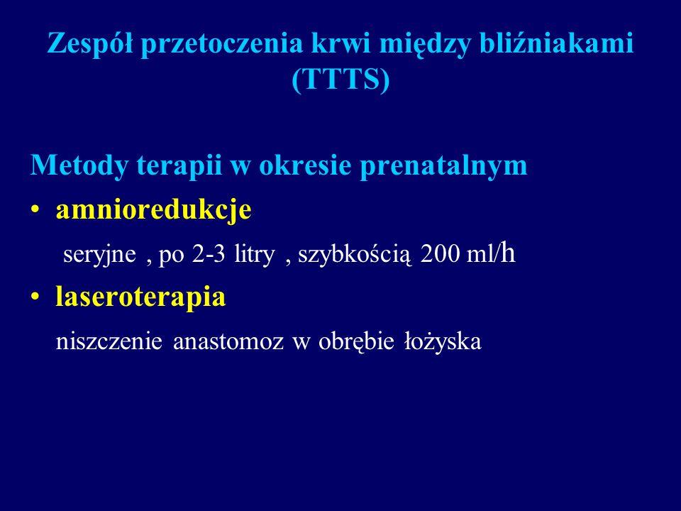 Zespół przetoczenia krwi między bliźniakami (TTTS)