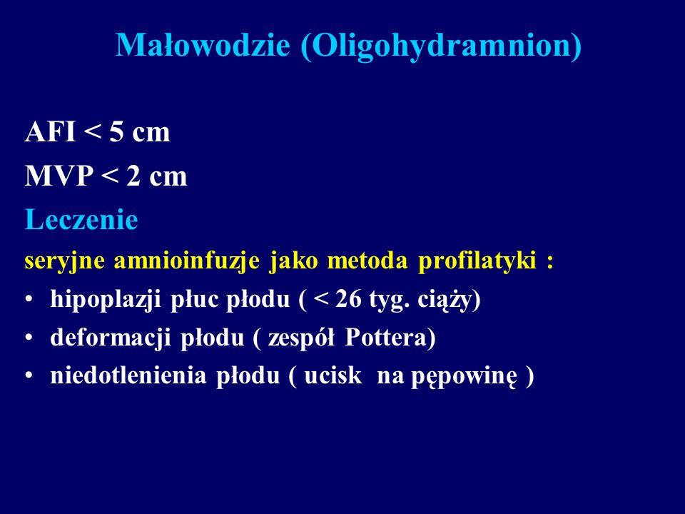 Małowodzie (Oligohydramnion)