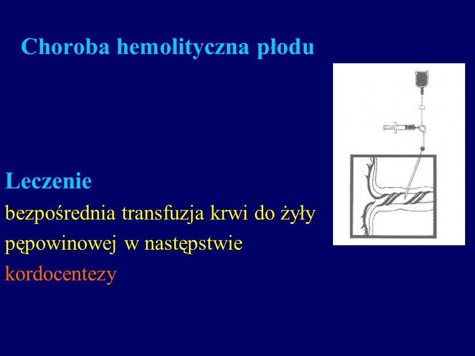 Choroba hemolityczna płodu