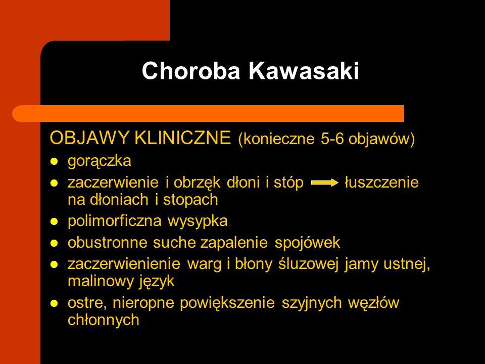 Choroba Kawasaki OBJAWY KLINICZNE (konieczne 5-6 objawów) gorączka