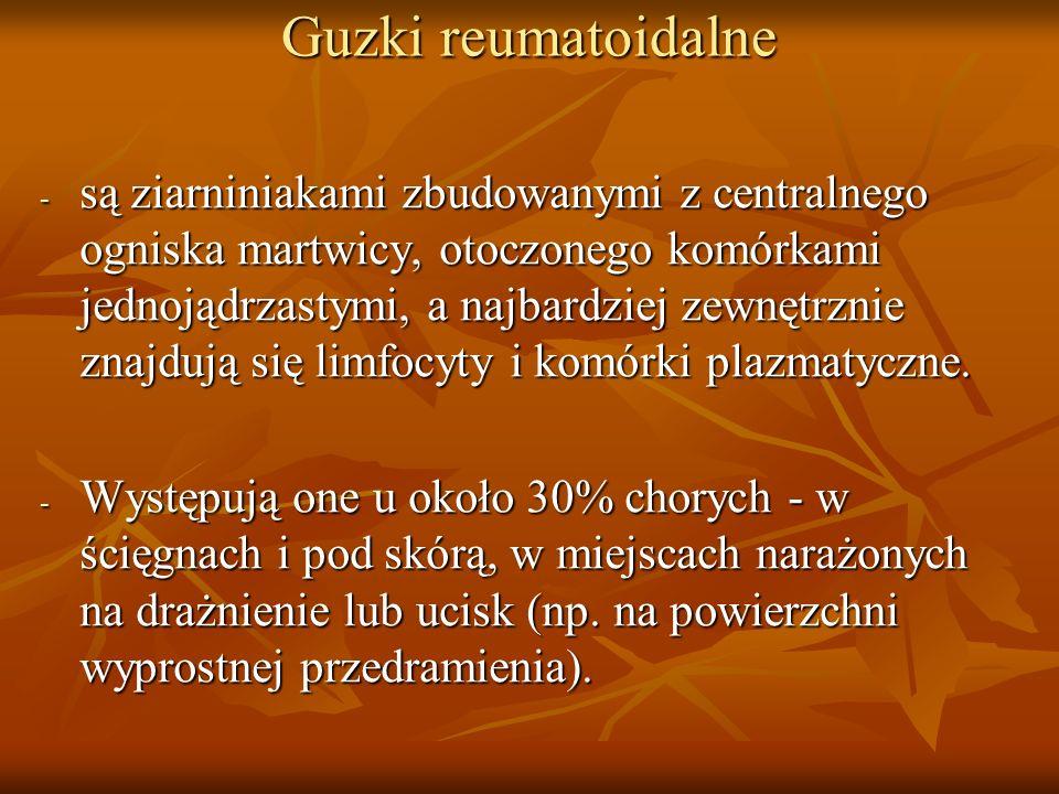 Guzki reumatoidalne