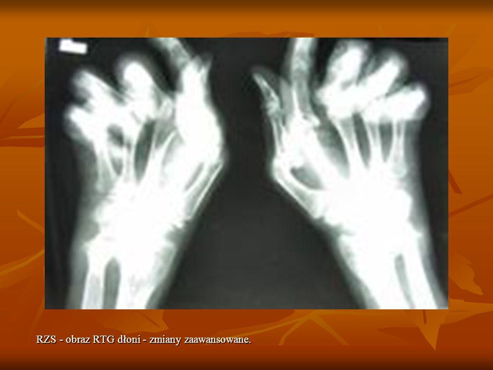RZS - obraz RTG dłoni - zmiany zaawansowane.