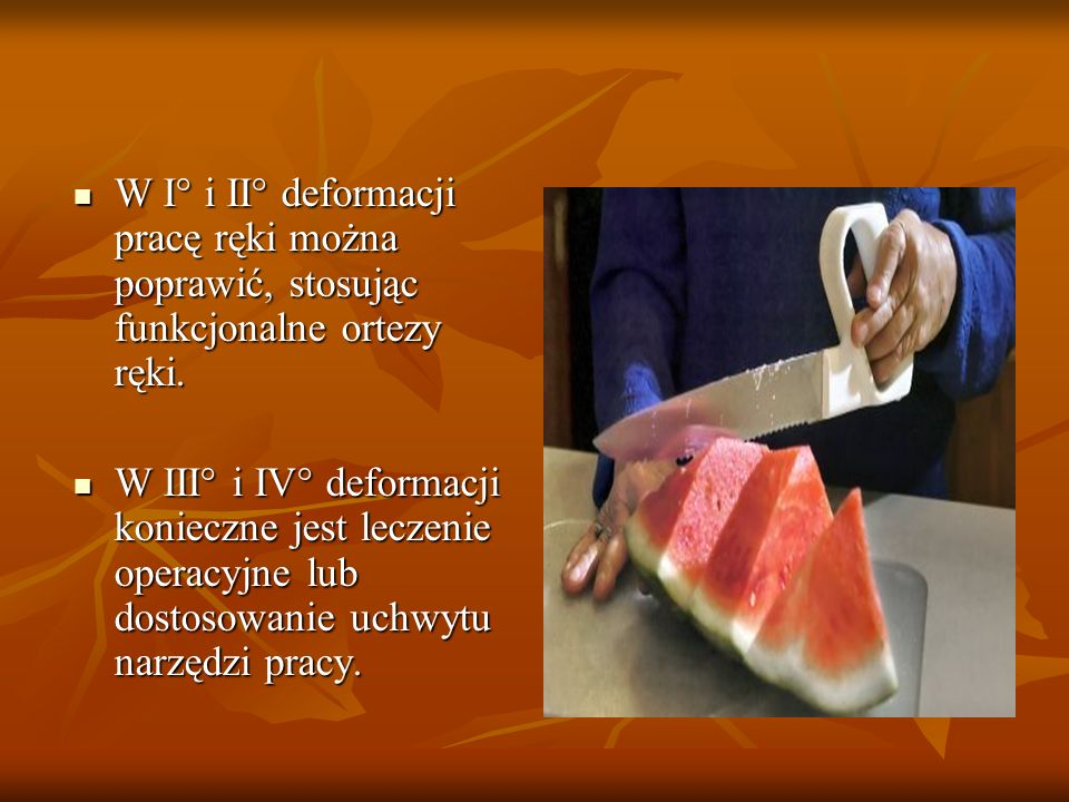 W I° i II° deformacji pracę ręki można poprawić, stosując funkcjonalne ortezy ręki.