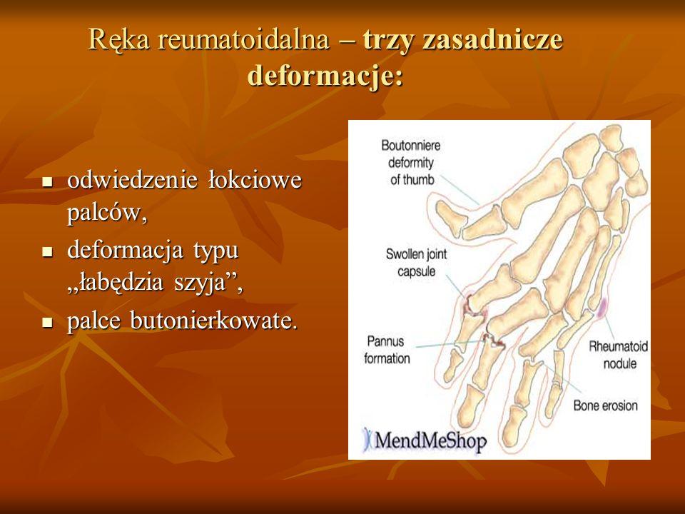 Ręka reumatoidalna – trzy zasadnicze deformacje: