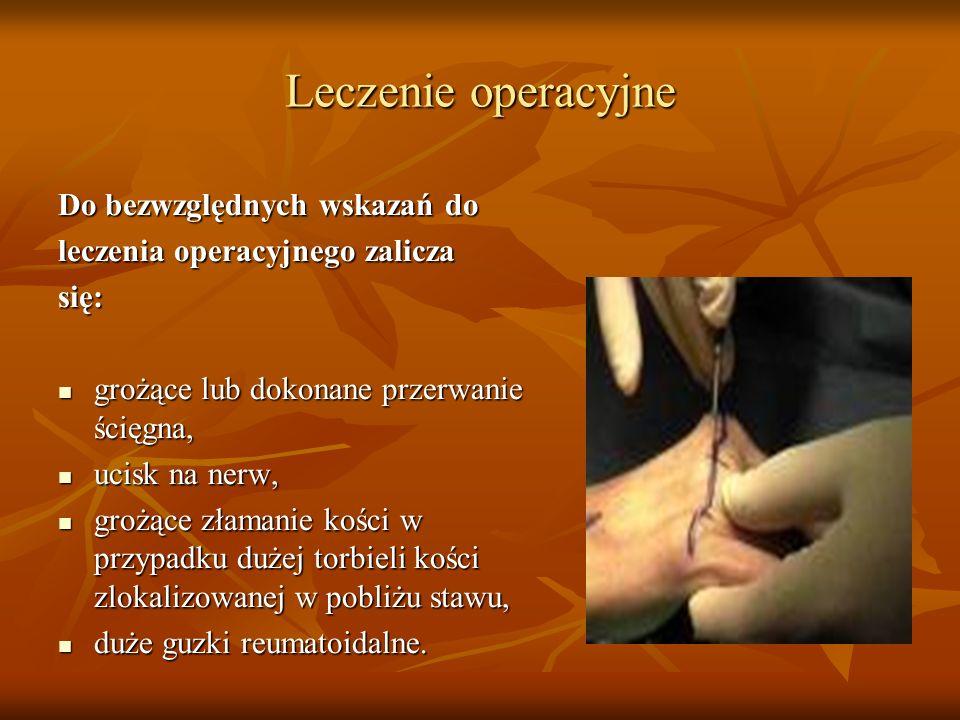 Leczenie operacyjne Do bezwzględnych wskazań do