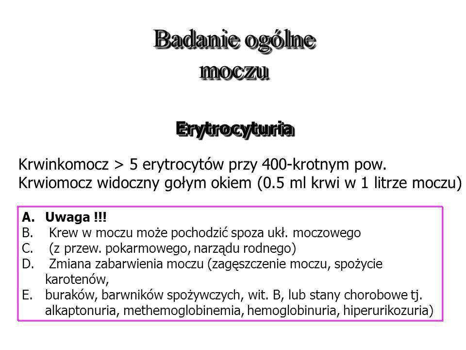 Badanie ogólne moczu Erytrocyturia