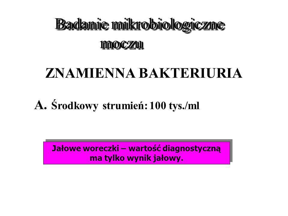 Badanie mikrobiologiczne moczu