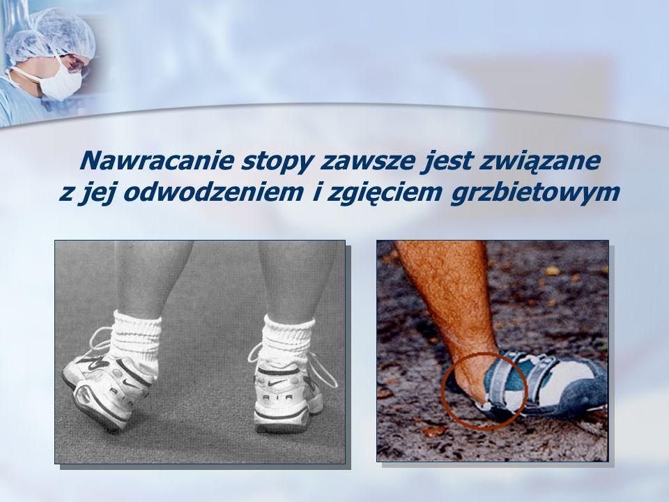 Nawracanie stopy zawsze jest związane