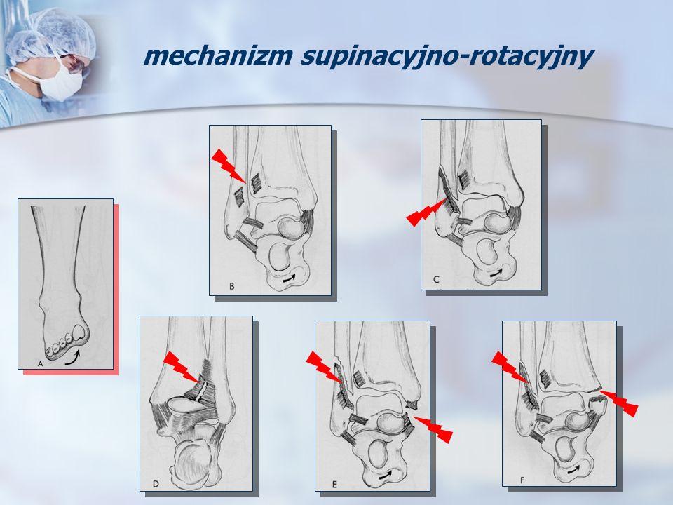 mechanizm supinacyjno-rotacyjny