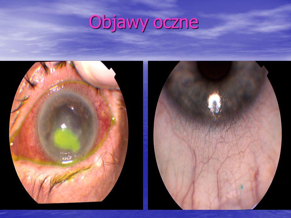 Objawy oczne