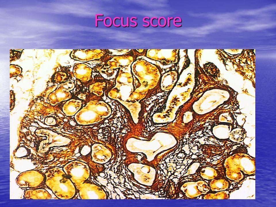 Focus score