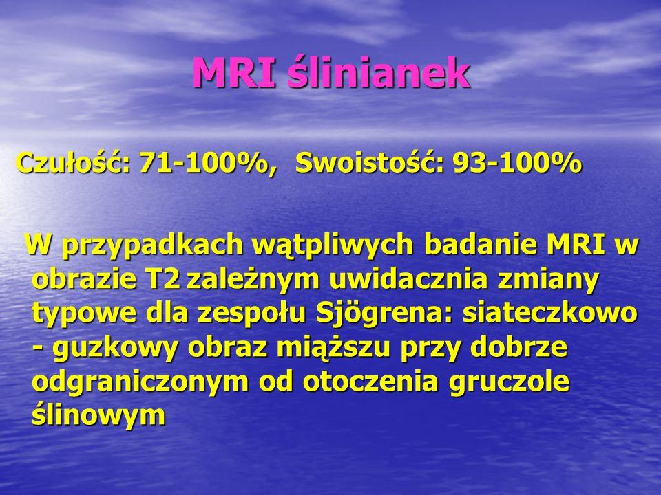MRI ślinianek Czułość: 71-100%, Swoistość: 93-100%