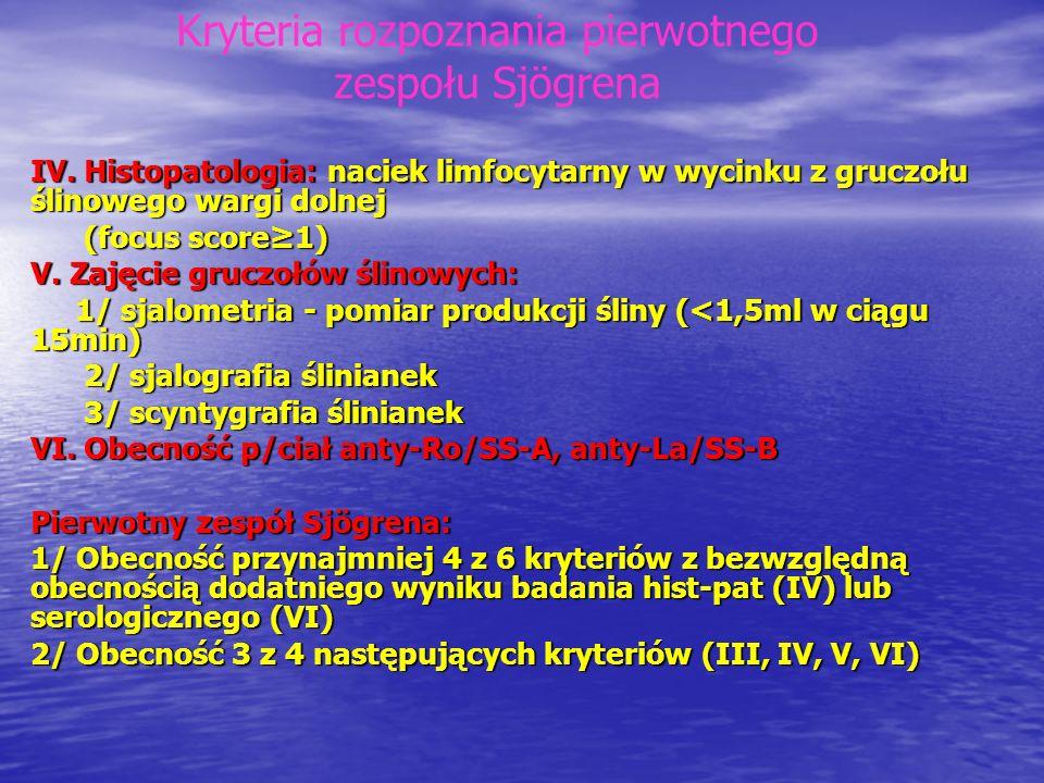 Kryteria rozpoznania pierwotnego zespołu Sjögrena
