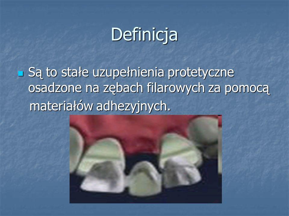 Definicja Są to stałe uzupełnienia protetyczne osadzone na zębach filarowych za pomocą.