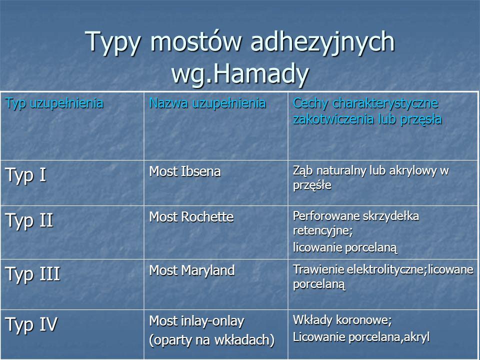 Typy mostów adhezyjnych wg.Hamady
