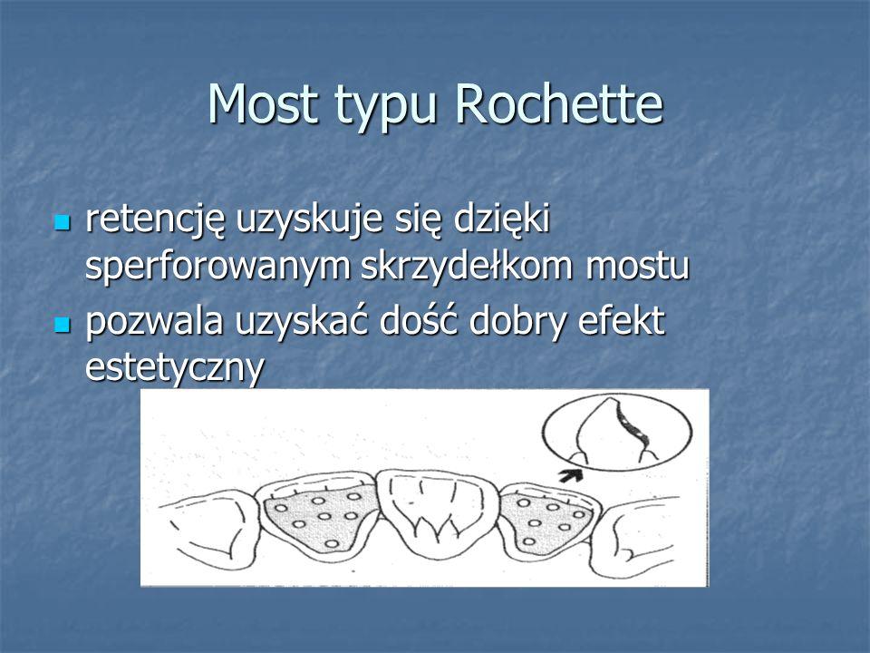 Most typu Rochette retencję uzyskuje się dzięki sperforowanym skrzydełkom mostu.