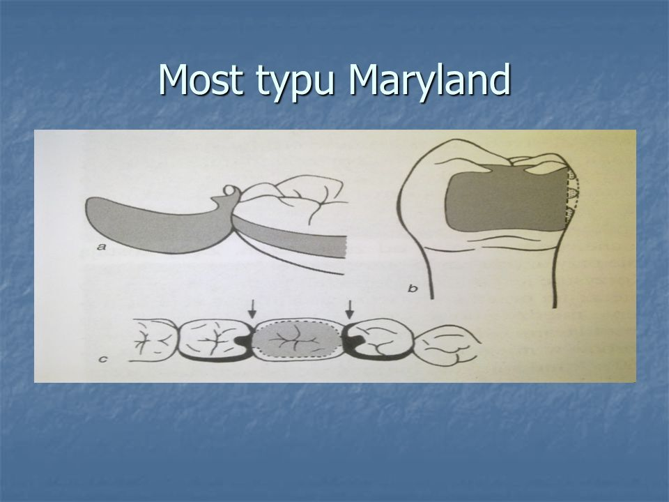 Most typu Maryland