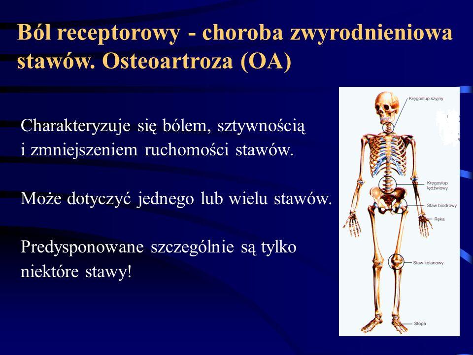 Ból receptorowy - choroba zwyrodnieniowa stawów. Osteoartroza (OA)