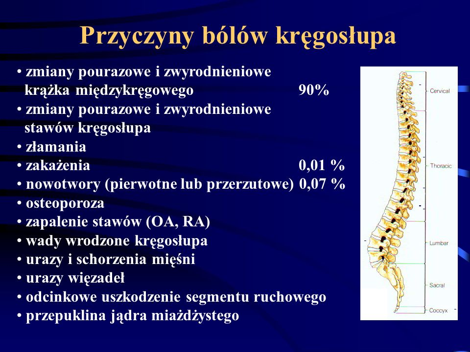 Przyczyny bólów kręgosłupa