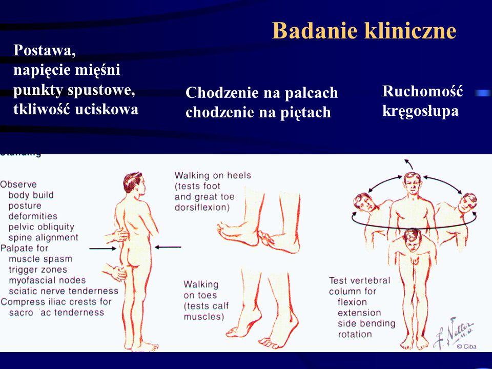 Badanie kliniczne Postawa, napięcie mięśni punkty spustowe,