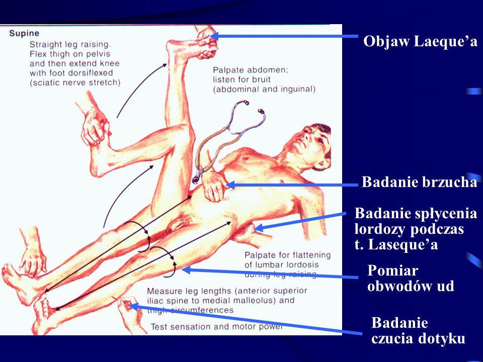 Objaw Laeque'a Badanie brzucha. Badanie spłycenia. lordozy podczas. t. Laseque'a. Pomiar. obwodów ud.