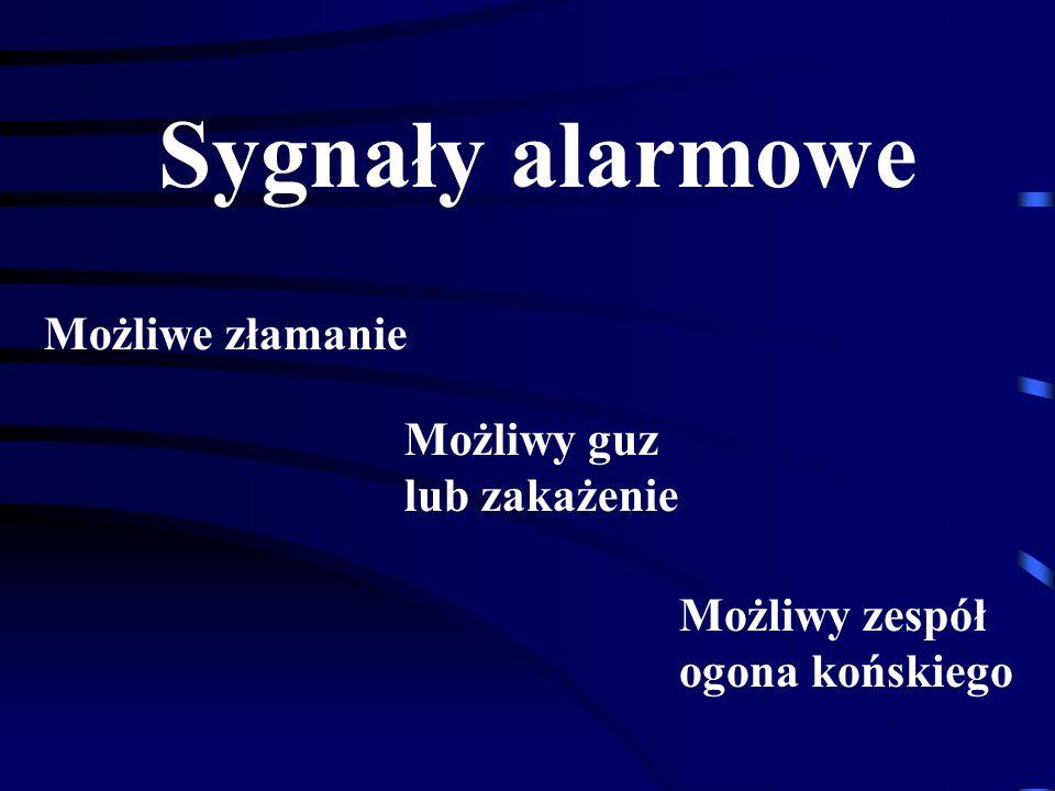 Sygnały alarmowe Możliwe złamanie Możliwy guz lub zakażenie
