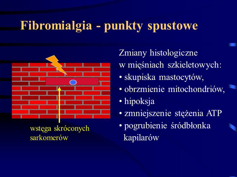 Fibromialgia - punkty spustowe