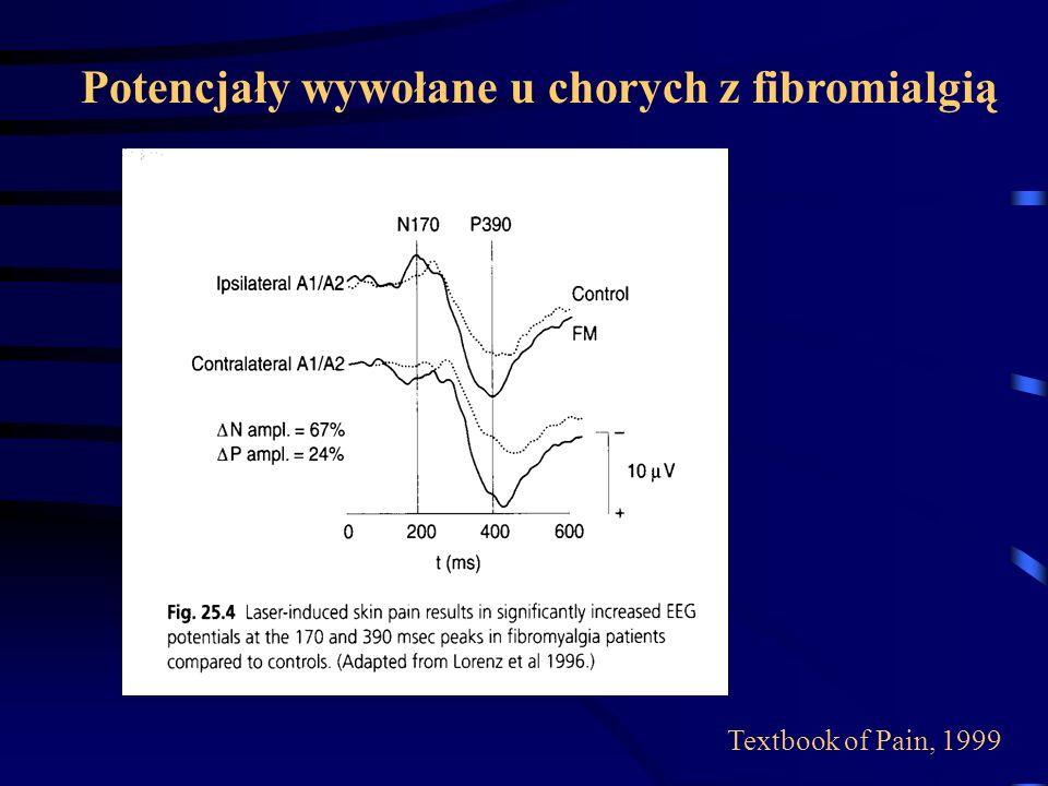 Potencjały wywołane u chorych z fibromialgią