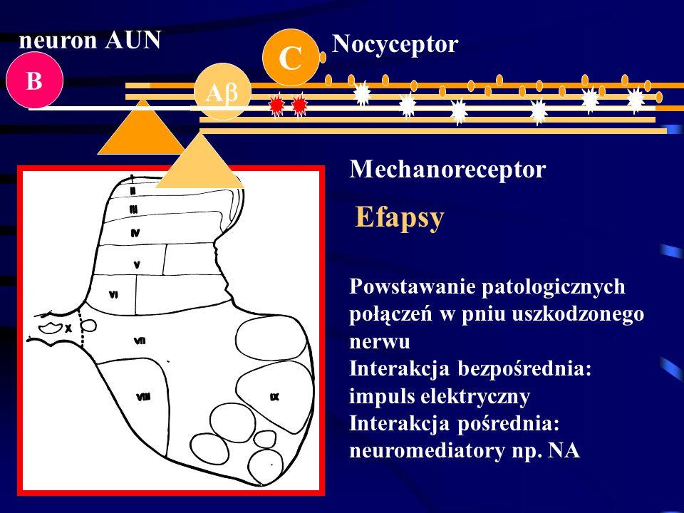 C Efapsy neuron AUN Nocyceptor B A Mechanoreceptor