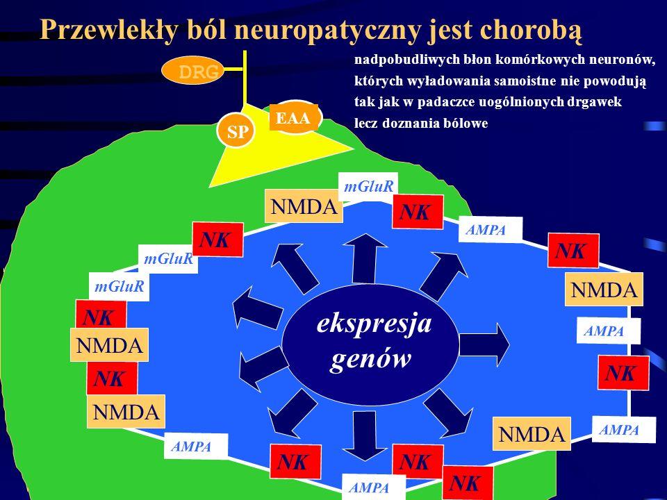 Przewlekły ból neuropatyczny jest chorobą