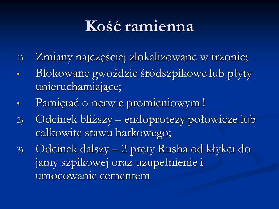 Kość ramienna Zmiany najczęściej zlokalizowane w trzonie;