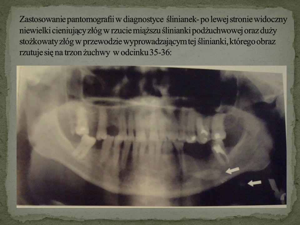 Zastosowanie pantomografii w diagnostyce ślinianek- po lewej stronie widoczny niewielki cieniujący złóg w rzucie miąższu ślinianki podżuchwowej oraz duży stożkowaty złóg w przewodzie wyprowadzającym tej ślinianki, którego obraz rzutuje się na trzon żuchwy w odcinku 35-36: