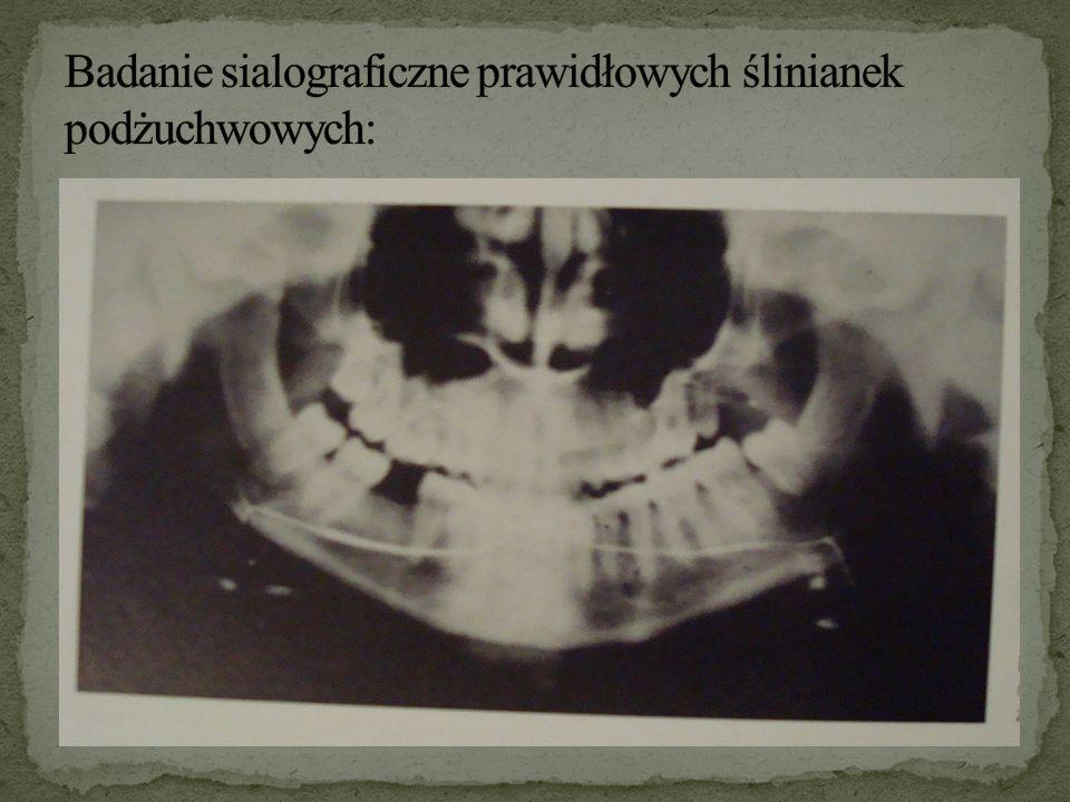 Badanie sialograficzne prawidłowych ślinianek podżuchwowych: