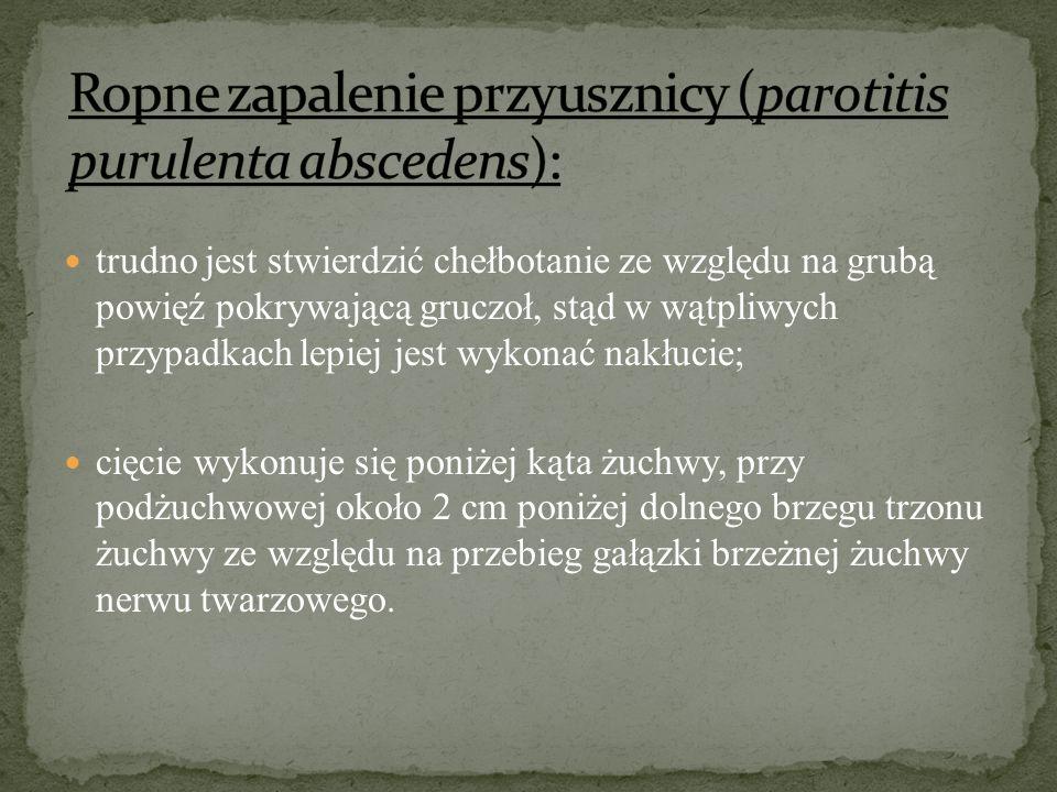 Ropne zapalenie przyusznicy (parotitis purulenta abscedens):