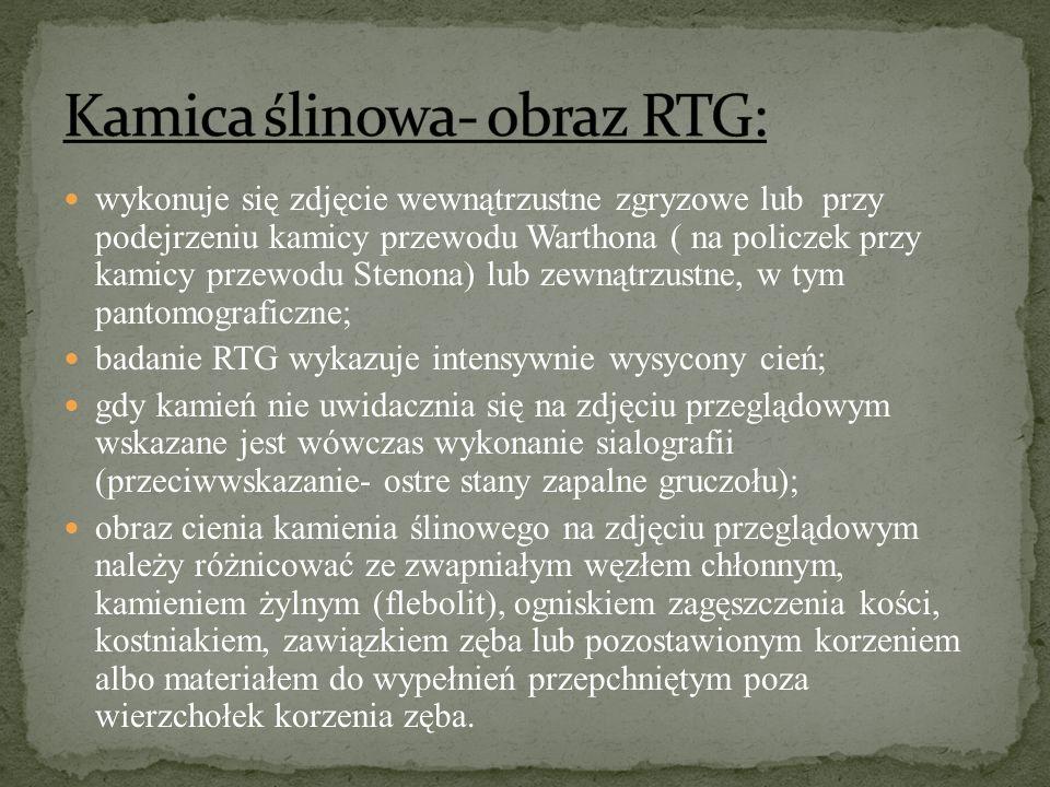 Kamica ślinowa- obraz RTG: