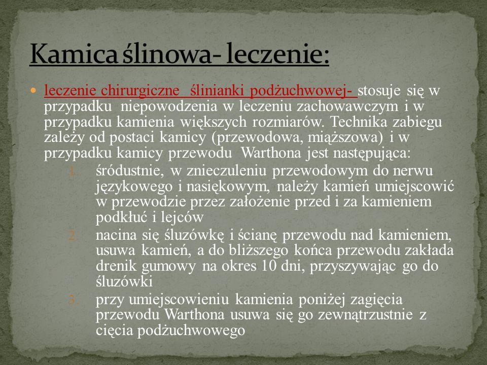 Kamica ślinowa- leczenie: