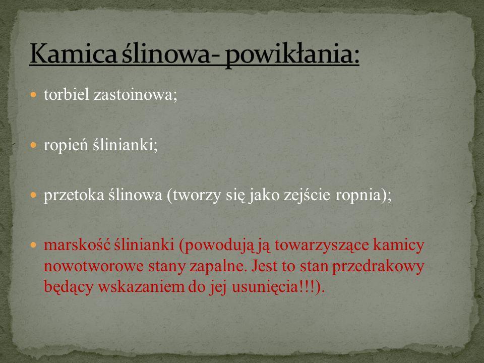 Kamica ślinowa- powikłania: