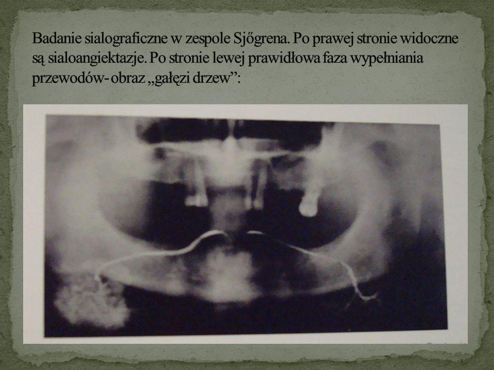 Badanie sialograficzne w zespole Sjőgrena