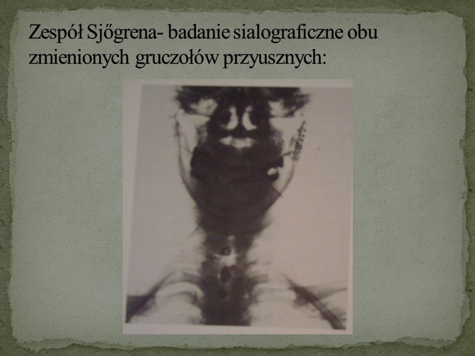 Zespół Sjőgrena- badanie sialograficzne obu zmienionych gruczołów przyusznych: