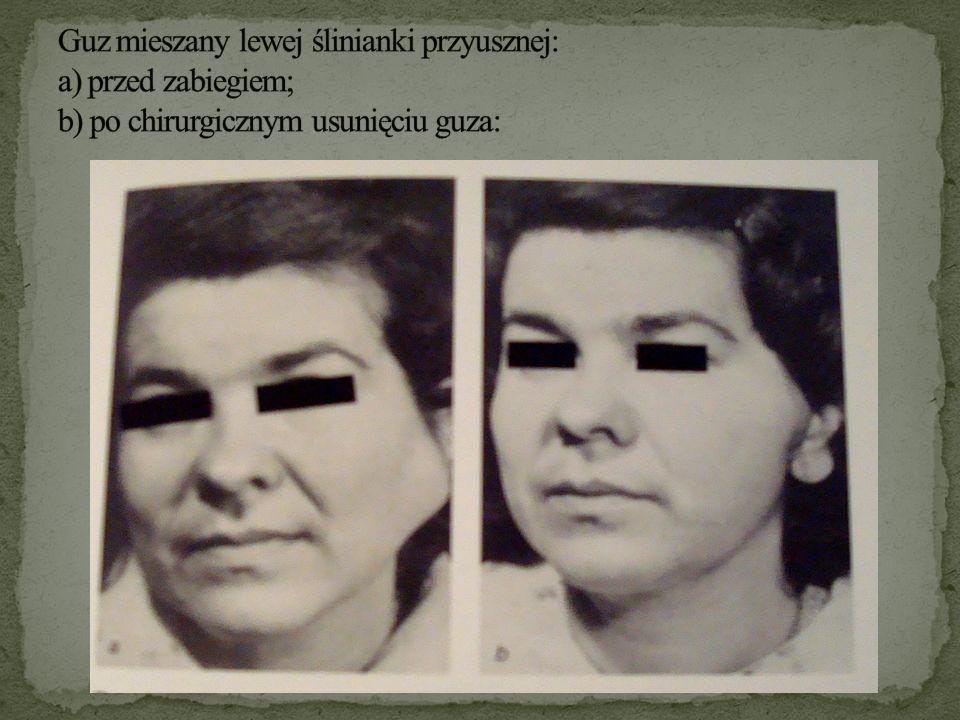 Guz mieszany lewej ślinianki przyusznej: a) przed zabiegiem; b) po chirurgicznym usunięciu guza:
